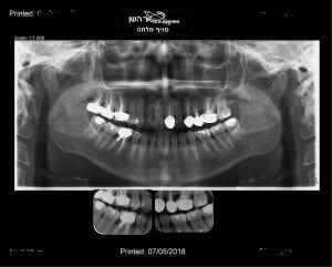 צילום סטטוס שיניים