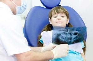 צילומי שיניים לילדים מותר או אסור